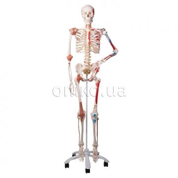 Кістяк
