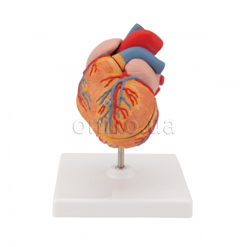 Classic Human Heart Model with Left Ventricular Hypertrophy, 2 part