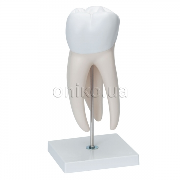 Giant Molar with Dental Cavities Human Tooth Model, 15 times Life-Size, 6 part