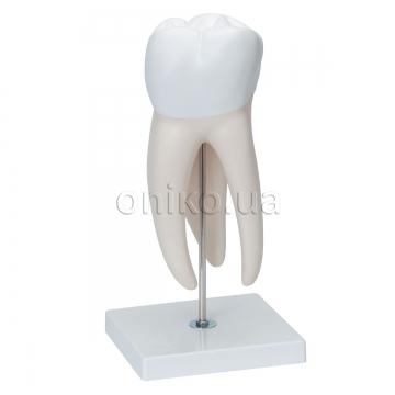 Верхний коренной зуб с кариесом