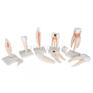 Классический набор моделей зубов, 5 моделей