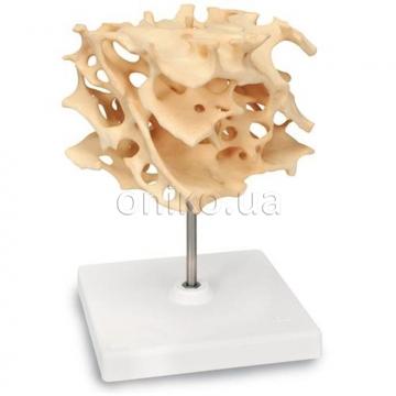 Модель структуры губчатой кости