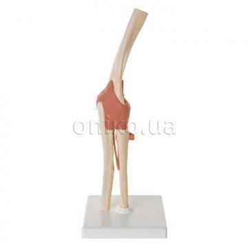 """Ліктьовий суглоб, функціональна модель класу """"люкс"""""""