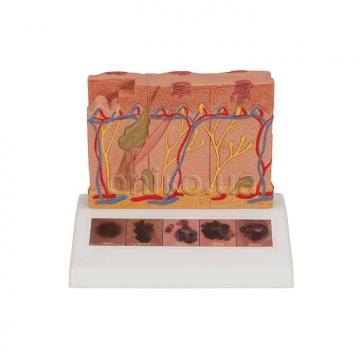 Модель 6 стадій раку шкіри