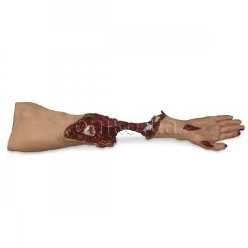 Модель критично травмованої руки