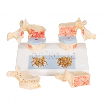 Модель остеопорозу