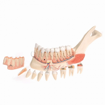 Comprehensive Lower Jaw Model (Left Half) with Diseased Teeth, Nerves, Vessels & Glands, 19 part