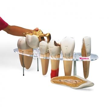 Комплект зубов с дефектами, 7 частей